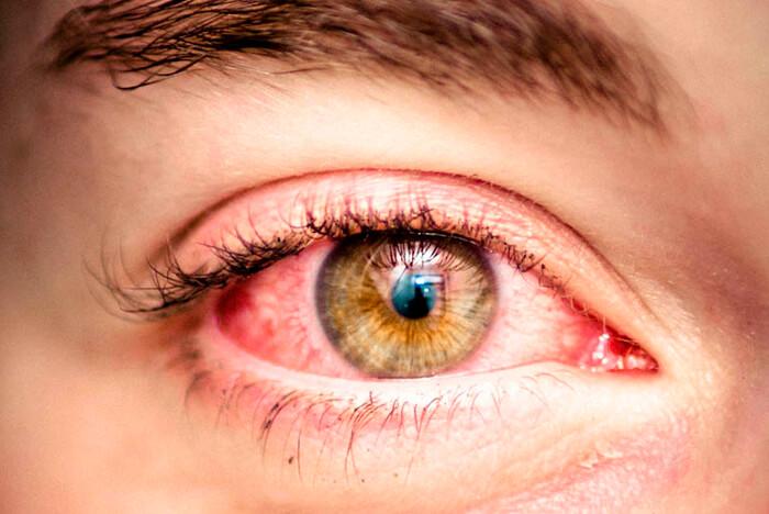 Почему от употребления каннабиса краснеют глаза?